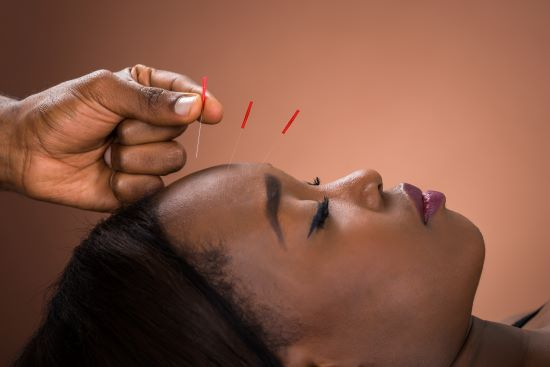 Close-up Of Young African Woman Receiving Acupuncture Treatment